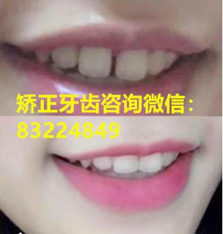 怎么矫正门牙牙缝大?牙缝大如何矫正?